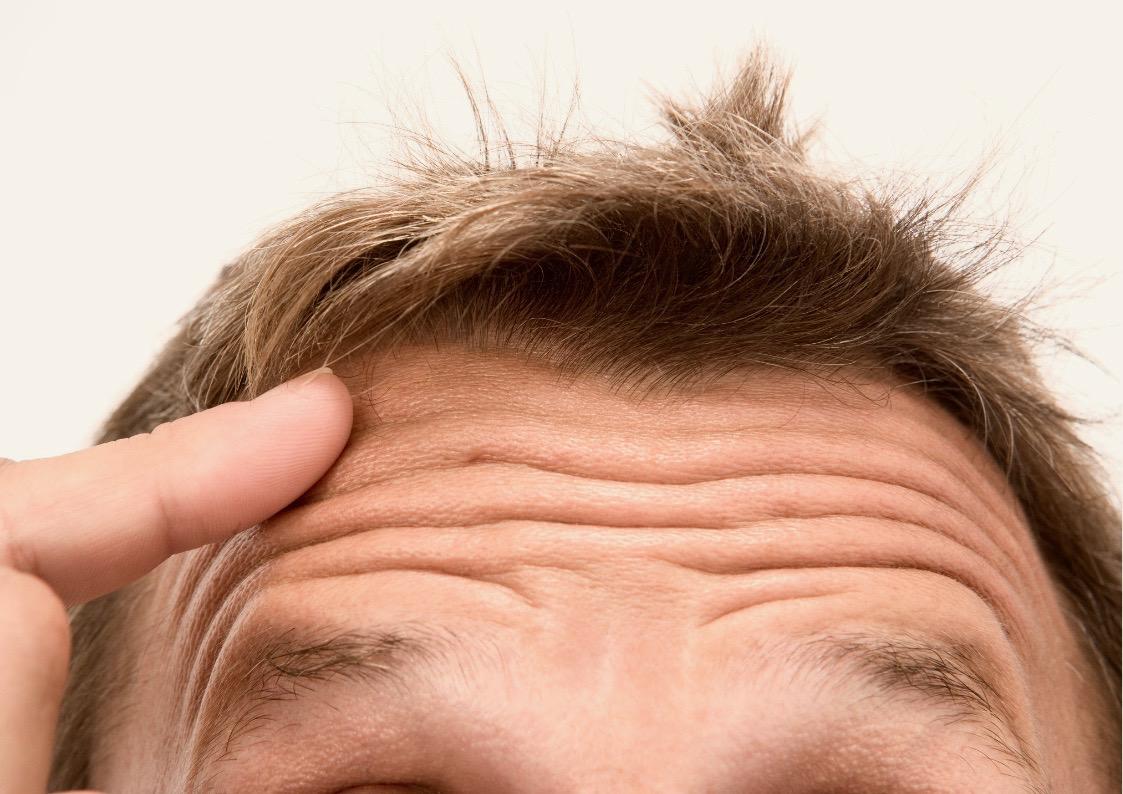 Wspólna przyczyna łysienia i zmarszczek