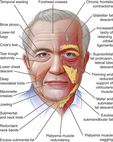 Zmiany tkanek miękkich twarzy iszyi