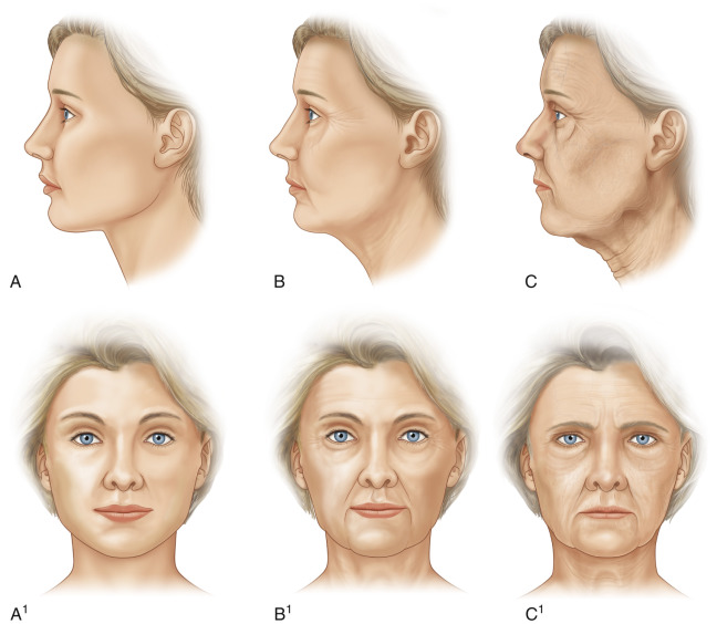 Twarz kobiety wykazującej: stopniowe pojawianie się zmarszczek, zmiany elastyczności skóry iredystrybucję tkanki tłuszczowej wwieku : A, 35 lat. B, 55 lat. C, 75 lat